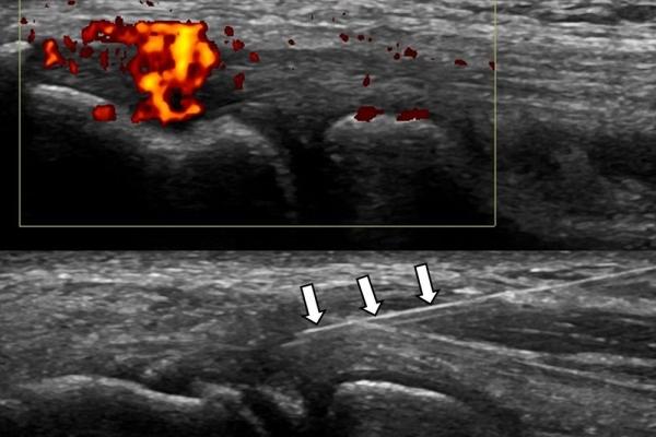 υπερηχογρφικά κατευθυνόμενη έγχυση ρrp σε επικονδυλίτιδα