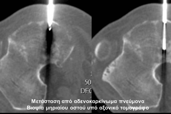 Βιοψία υπό αξονικό τομογράφο_μετάσταση μηριαίου οστού από αδενοκαρκίνωμα πνεύμονα