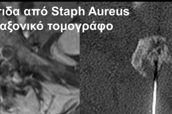 Βιοψία υπό αξονικό τομογράφο / σηπτική αρθρίτιδα αποφυσιακής άρθρωσης