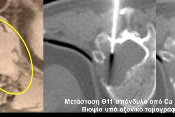 Βιοψία υπό αξονικό τομογράφο / σπονδυλική μετάσταση από Ca μαστού