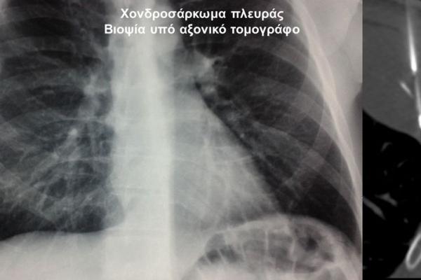 Βιοψία υπό αξονικό τομογράφο / χονδροσάρκωμα πλευράς