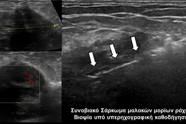 Βιοψία υπό υπέρηχογραφική καθοδήγηση_Συνοβιακό Σάρκωμα μαλακών μορίων ράχης
