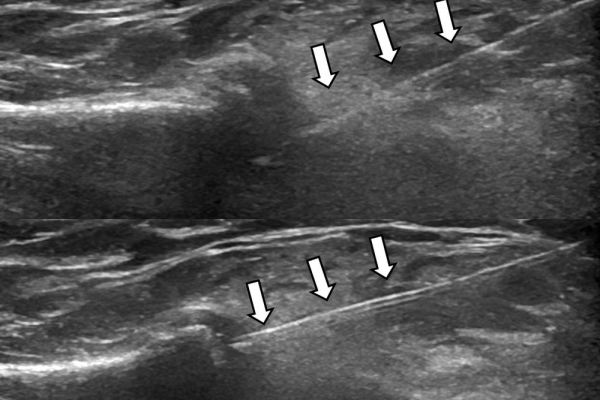 Υπερηχογραφικά κατευθυνόμενη έγχυση / οστεοαρθρίτιδα ακρώμιοκλειδικής