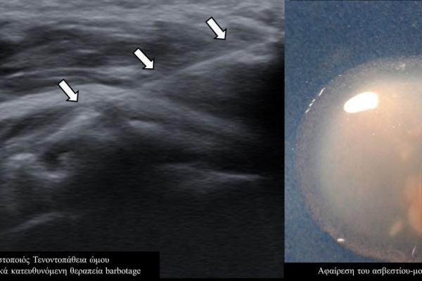 Υπερηχογραφικά κατευθυνόμενη θεραπεία barbotage / ασβεστοποιός τενοντοπάθεια ώμου2