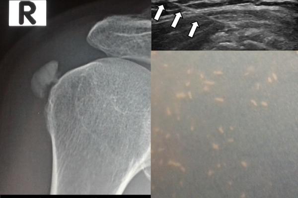 Υπερηχογραφικά κατευθυνόμενη θεραπεία barbotage / ασβεστοποιός τενοντοπάθεια ώμου3
