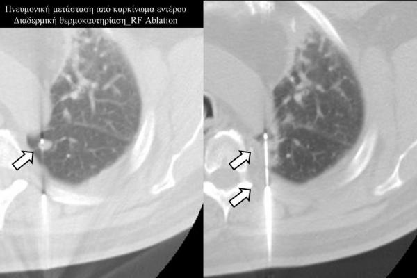 Διαδερμική θερμοκαυτηρίαση / RF Ablation πνευμονικής μετάστασης καρκίνου παχέος εντέρου