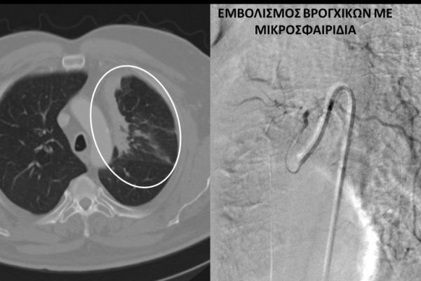εμβολισμός βρογχικών αρτηριών σε ασθενή με καρκίνο πνεύμονα και ενεργό αιμόπτυση