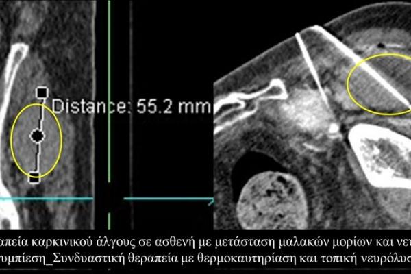 Συνδυαστική θεραπεία πόνου με θερμοκαυτηρίαση και τοπική νευρόλυση σε μετάσταση μαλακών μορίων