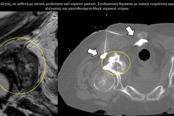 Συνδυαστική θεραπεία πόνου με τοπική νευρόλυση ιεροκοκκυγικού νευρικού πλέγματος και κατευθυνόμενο block ισχιακού νεύρου