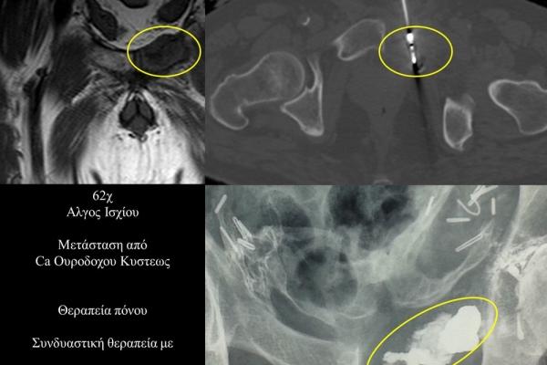 Συνδυαστική θεραπεία πόνου σε οστική μετάσταση πυέλου