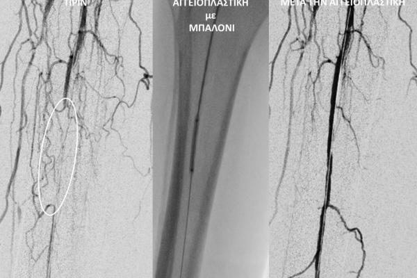 Aγγειοπλαστική κάτωθεν του γόνατος σε ασθενή με διαβητικό έλκος και γάγγραινα_αποφυγή ακρωτηριασμού