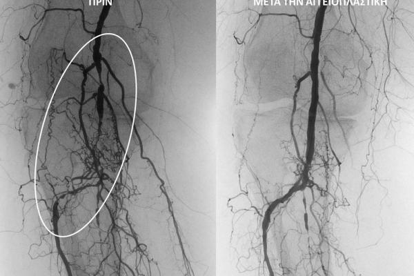 Αγγειοπλαστική ιγνυακής και κνημοπερονιαίου άξονα σε ασθενή με διαλείπουσα χωλότητα