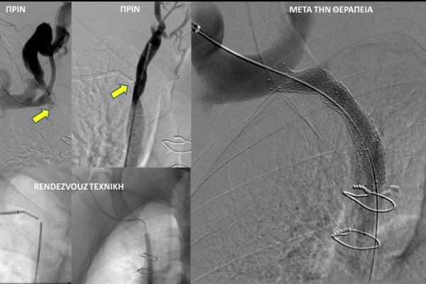 Φιστουλογραφία και αγγειοπλαστική  σε αιμοκαθαιρόμενο ασθενή με χρόνια απόφραξη ανωνύμου φλέβας