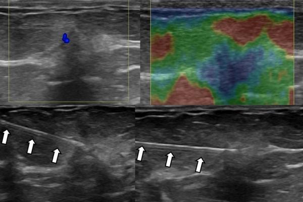 Βιοψία μαστού / FNA πορογενούς καρκινώματος