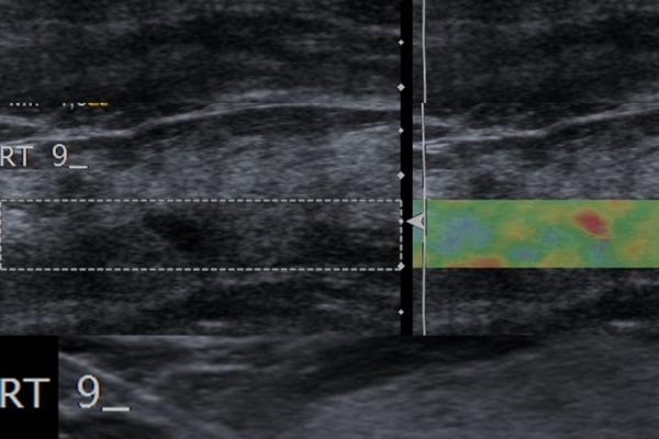 Εστιακή λοβιακή υπερπλασία / Ελαστογραφική μελέτη και βιοψία