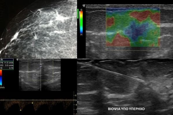 Καρκίνωμα μαστού / Ελαστογραφική μελέτη και μελέτη μικροαγγείωσης / Βιοψία