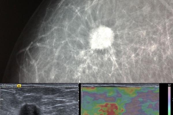 Καρκίνωμα μαστού / Ελαστογραφική μελέτη προεγχειρητικά