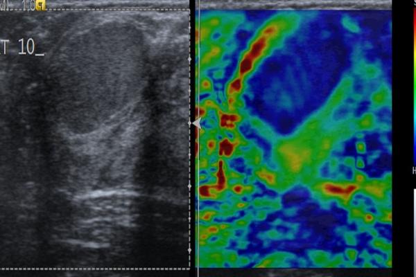 Φυλλοειδής όγκος μαστού-ελαστογραφική μελέτη